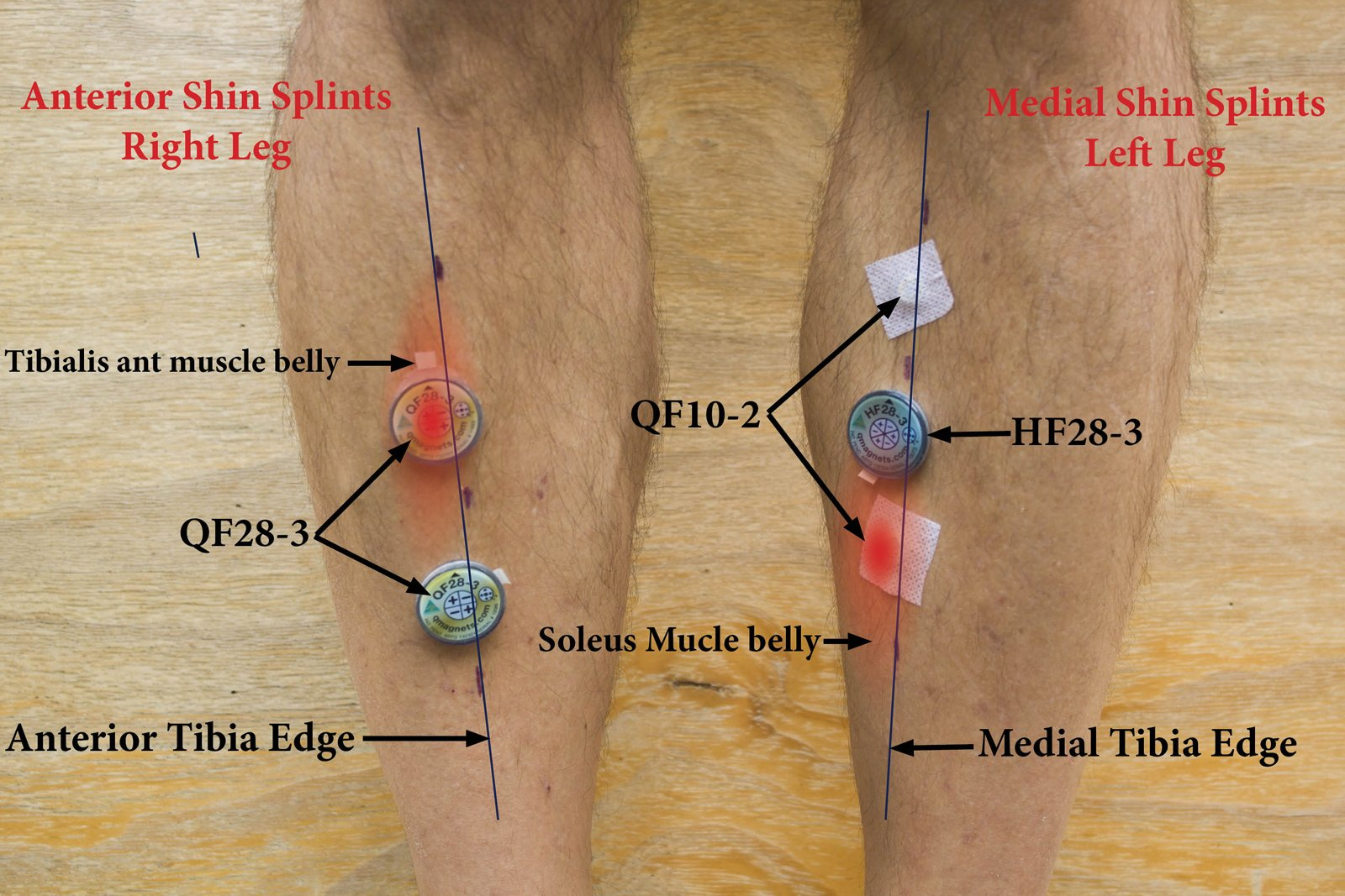 How to use Q Magnet therapy for minor shin soreness?